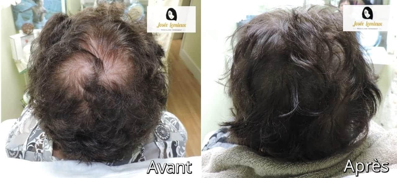 alopetie josee lemieux