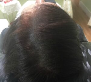 alopecie-femme-apres