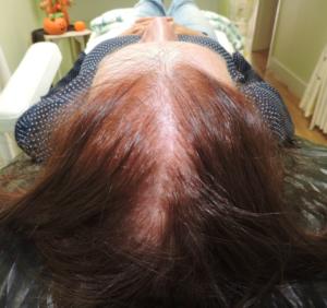 alopecie-femme-avant